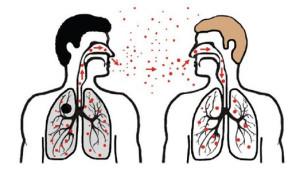 Patarimai gyventojams! Ką reikia žinoti apie tuberkuliozę, kad nustatyta diagnozė neišgąsdintų.