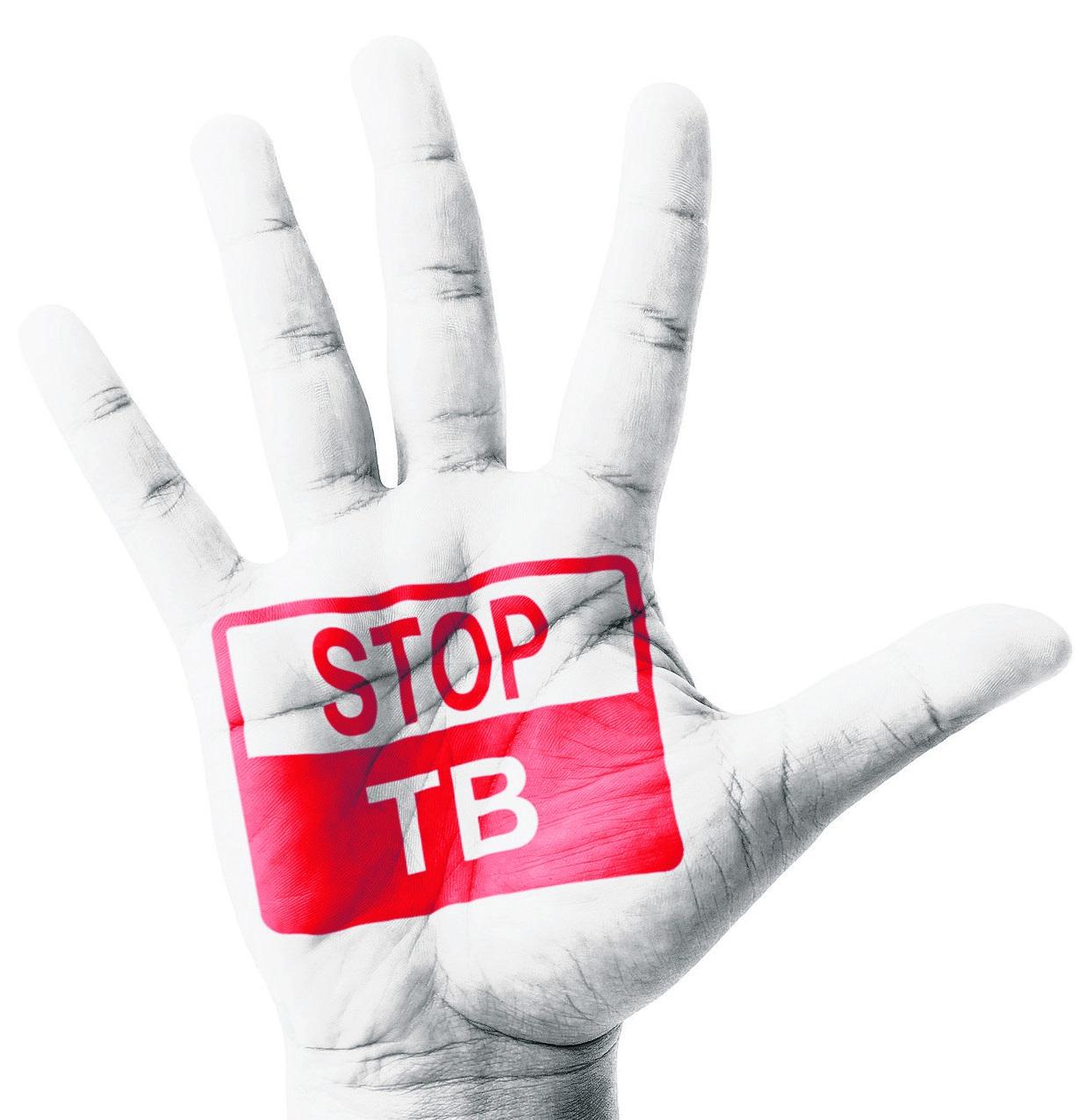 Tuberkulino mėginiai pernai padėjo išaiškinti 32 tuberkulioze sergančius vaikus